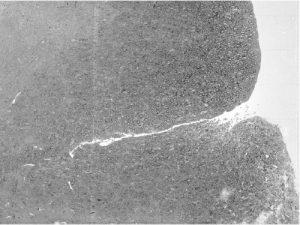 neuron-2